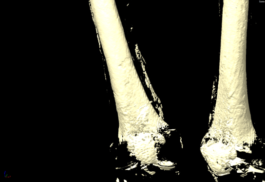 Scan showing calcified plaque deposits, called atheromas, found in Tamut's left femoral artery, that runs along the thigh bone (femur).
