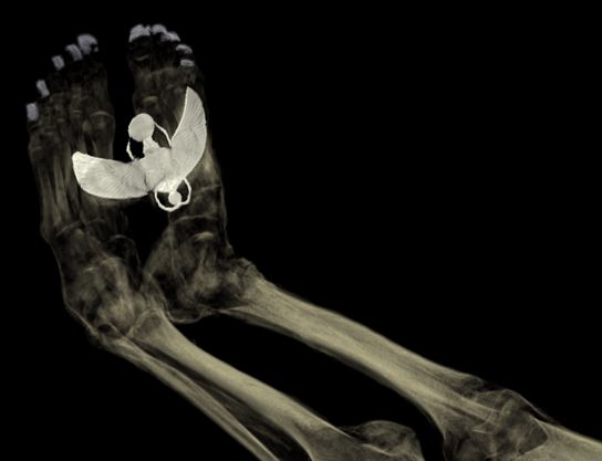 Visualisation showing a view of Tamut's feet, with metal covers on her toenails and a large sheet-metal image of the winged scarab beetle Khepri propelling the disc of the sun, placed inside the mummy-wrappings.