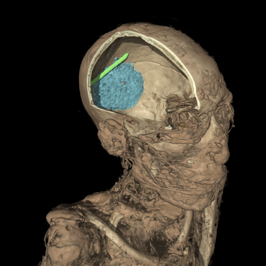Visualisation showing a virtual section across the head of the man from Thebes, revealing the embalmer's tool (in green) and brain residue (highlighted in blue) found inside his skull.